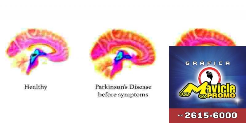 Os sinais da doença de Parkinson que aparecem no cérebro dos 20 anos de idade, antes que os sintomas de